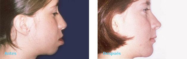 Cirugia Maxilofacial y Deformidades dentofaciales