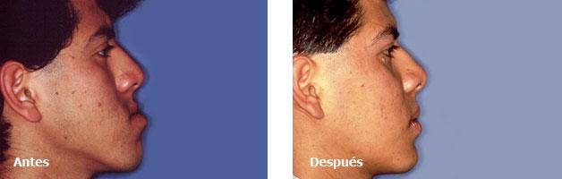 Cirugia Maxilofacial-Deformidades Dentofaciales Prognatismo