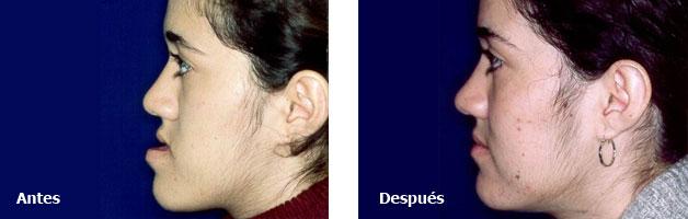 Deformidades Dentofaciales Prognatismo