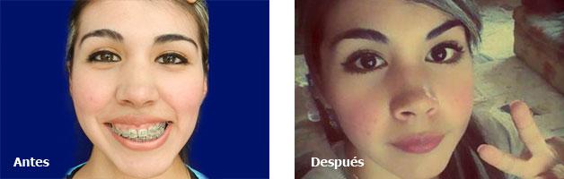 Asimetria Facial Ejemplos