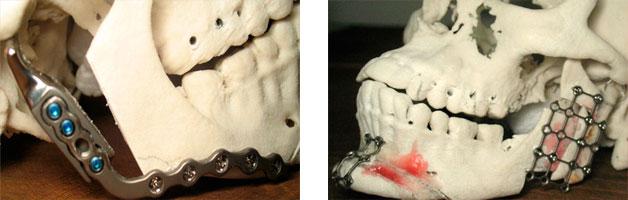 Cirugia-Maxilofacial-Reconstruccion-de-maxilares-ejemplo-3
