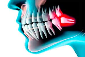 Muelas del juicio del cirujano oral