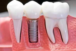 Implantes Dentales Cirujano maxilofacial