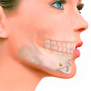 Cirugia Maxilofacial que es