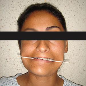 Asimetria Facial, Cirugia facial