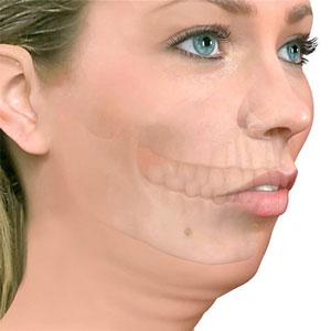 Retrognacia Cirugia Ortognatica Cirugia Maxilar