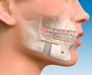 Especialista cirujano maxilofacial muelas del juicio