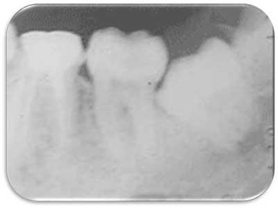 Radiografia periapical muelas del juicio