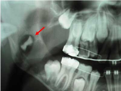 Ortodoncia muelas del juicio2