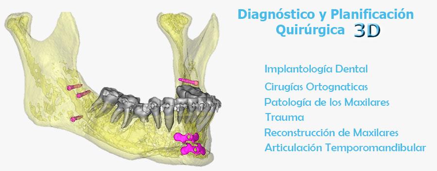 Diagnostico 3D