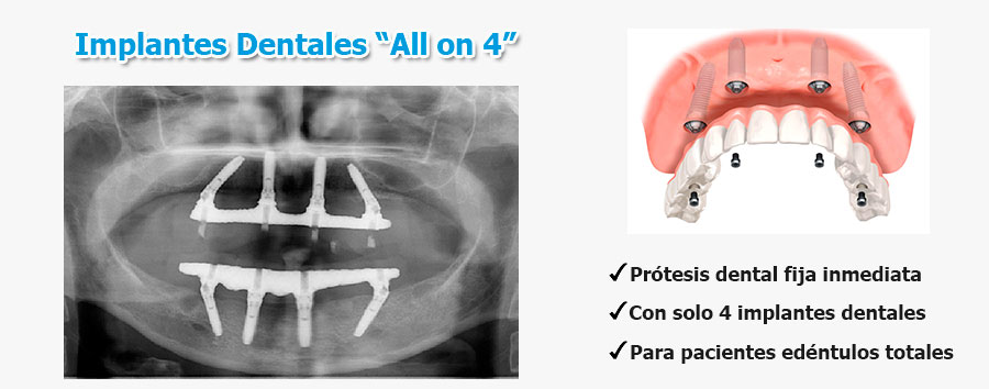 implantes-dentales-all-on-4
