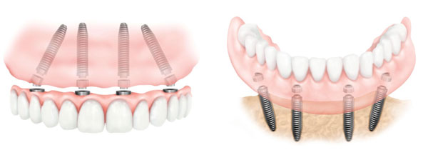 Implantes Dentales All on Four Inferior y Superior