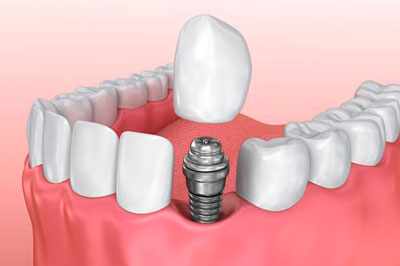 Implantes Dentales Unitarios