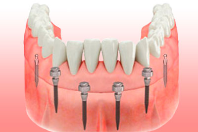 Mini Implantes Dentales