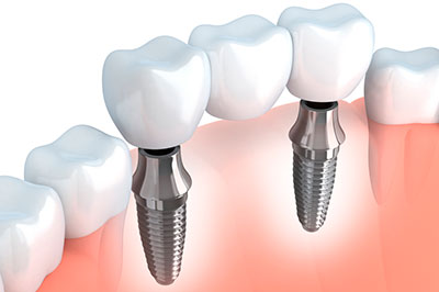 Puente con Implantes Dentales