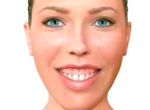 Sonrisa Gingival