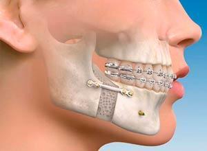 Tratamientos - Cirugia Maxilofacial