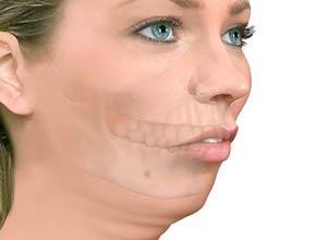 Cirugía Ortognatica