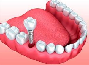 Tratamientos - Implantes Dentales