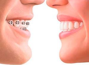 Tratamientos Ortodoncia