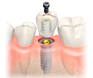 Carga Inmediata Implantes Dentales