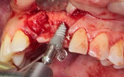 Caso Clínico Implantes con carga inmediata