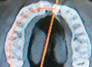 Distracción Alveolar Histogénica