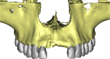 Software Dental 3D