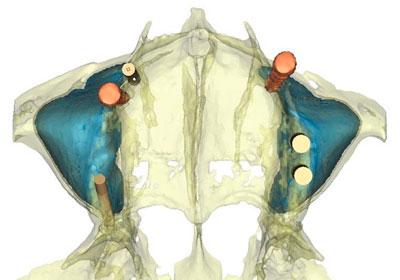 Implantes Dentales pterigoideos