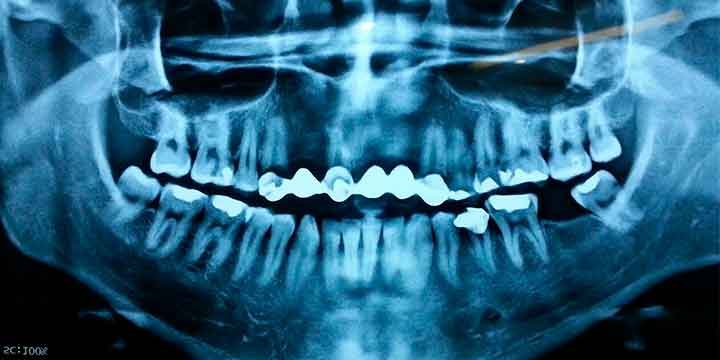 Injerto de rama ascendente mandibular