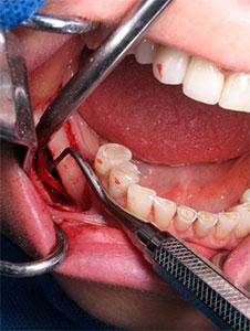 Lateralización implantes dentales