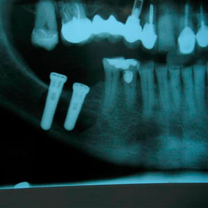Lateralización implantes dentales