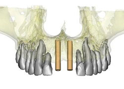 Planificación 3d de implantes