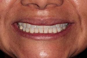 Planificación Quirúrgica 3D en Implantes Dentales