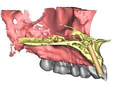 Planificación de implantes