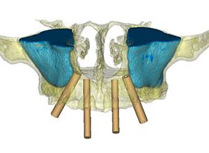 Rehabilitación Protesica con Enfermedad Periodontal