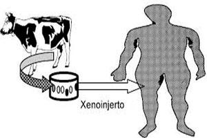 Xenoinjerto