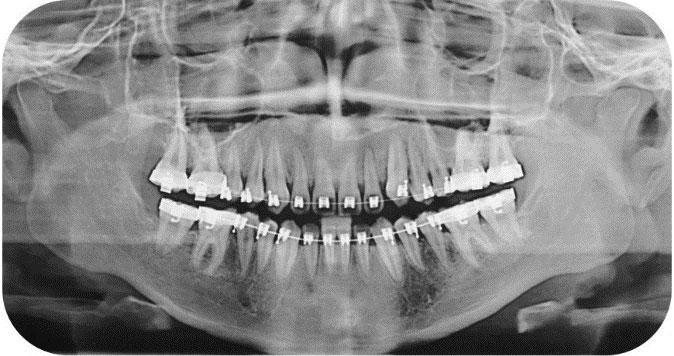 Ortodoncia Acelerada RX