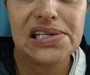 Anquilosis Fibrosa Articulo