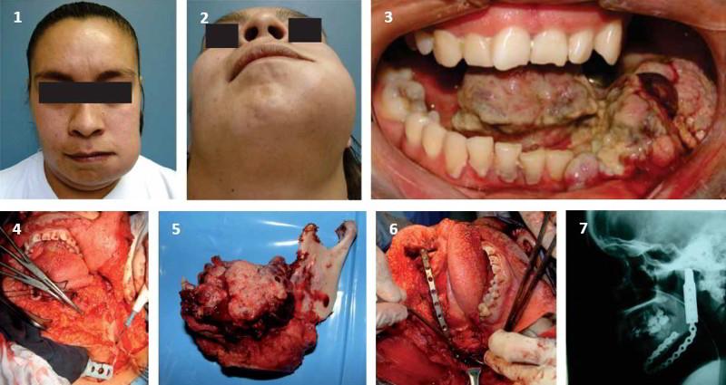 Melanoma Amelanótico Primario de Cavidad Oral