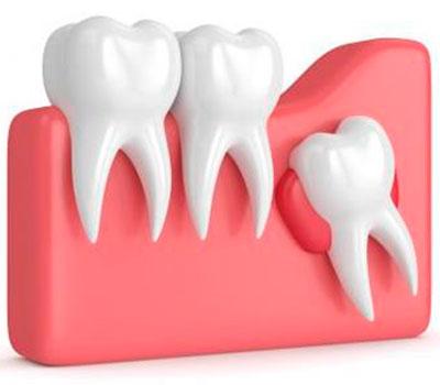 Indicaciones para Extracción Dental